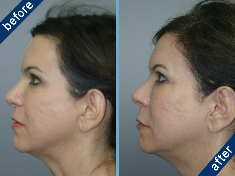 Before and after Otoplasty results