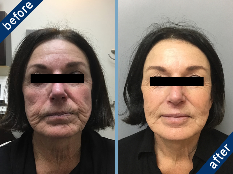 Botox and Juvéderm before and after results