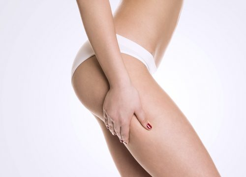 Woman's body after QWO cellulite reduction treatments