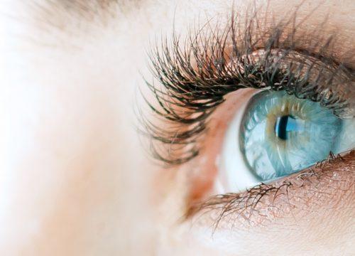 Eyelids after eyelid lift surgery